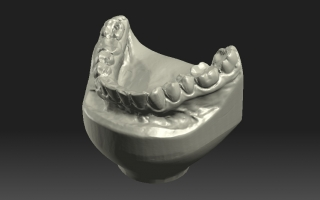 Skan 3D - wycisk ortodontyczny